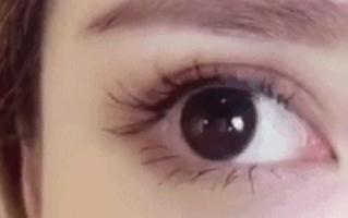 什么人适合平行欧式双眼皮
