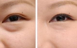 去眼袋手术多少钱,去眼袋术后如何护理