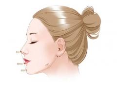 美莱达拉斯隆鼻,让你拥有好看的侧颜杀