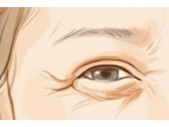 眼角有很深的鱼尾纹怎么才能去除