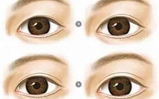 双眼皮肉条形成的原因
