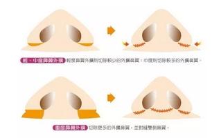 鼻翼缩小的方法,鼻翼缩