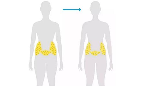 美莱医生揭秘吸脂减肥,脂肪移植填充