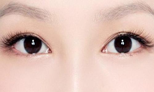 上海双眼皮整形费用是多少呢