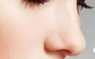 整鼻子哪种方法好