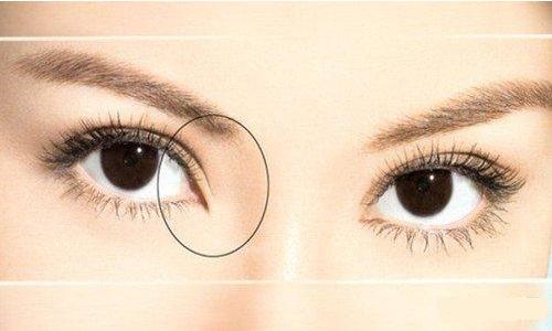 开眼角整形术后多久才可以带隐形眼镜