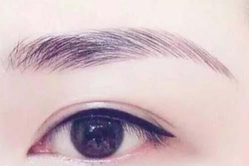 上海做种植眉毛手术一般要多少钱