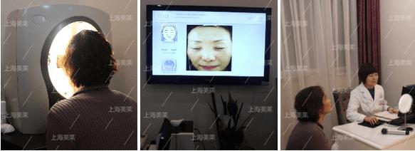 上海美莱祛斑案例
