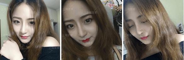 美莱韩式小翘鼻