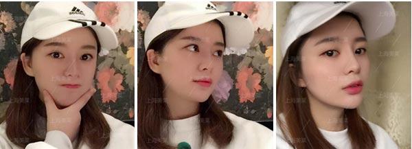 上海美莱线雕隆鼻案例