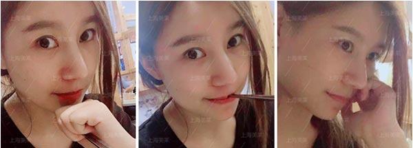 上海美莱隆鼻案例