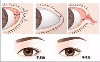 开眼角是开哪里,开眼角术后注意事项