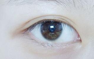 双眼皮割宽了能变窄吗