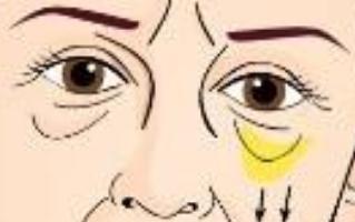 割眼袋手术失败怎么办