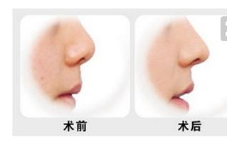 为什么隆鼻比较严重