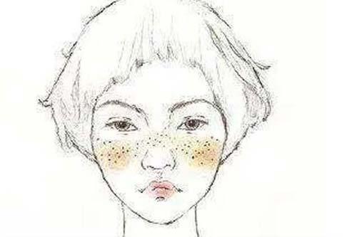 脸上有斑怎么办,上海美莱皮秒祛斑来帮你