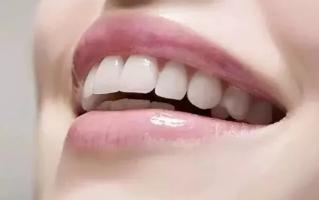 什么样的牙适合做牙贴面
