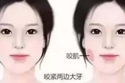 脸部抽脂减肥手术效果怎么样,多少钱啊