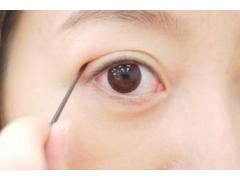 做埋线双眼皮手术大概费