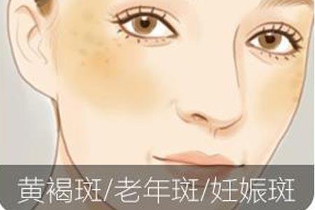 激光真的能治疗脸上的黄褐斑吗