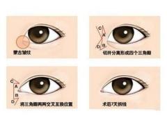 眼睛小做开眼角整形手术大概要多少钱