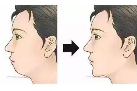 下巴很短怎么办,做假体隆下巴怎么样