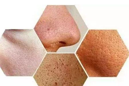 肌肤干燥、缺水、毛孔粗大怎么办,打一针水光就能解决