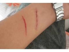身上有疤痕怎么才能去除呀