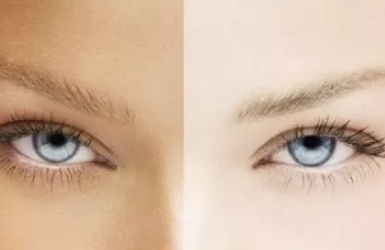 黑眼圈消除最快的方法