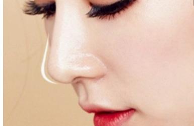 线雕鼻子为什么肿了变宽