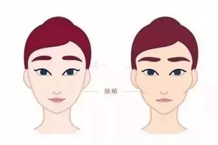 自体脂肪面部填充全脸,会不会显得很假