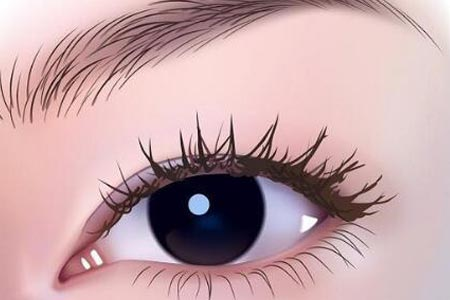 做埋线双眼皮整形手术费用会不会很贵