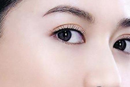 美莱全度美眸双眼皮打造自然灵动双眼皮