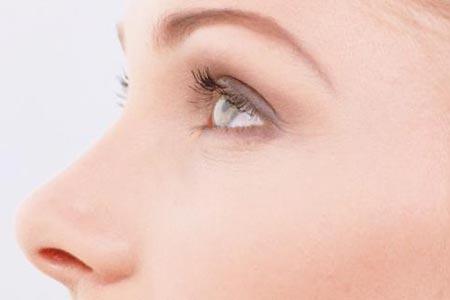 做完假体隆鼻手术大概多久能消肿呢