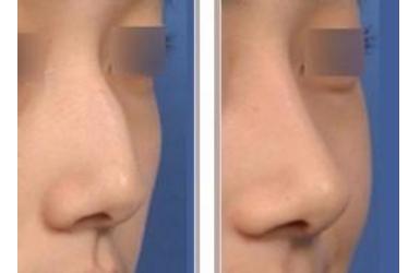 驼峰鼻自己可以纠正吗
