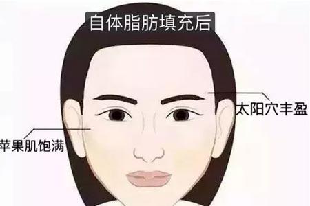 我的脸比较大,为什么医生建议我做自体脂肪面部填充