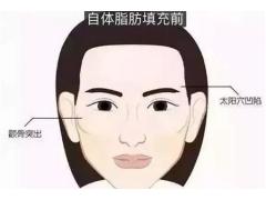 我的脸很大,为什么医生建议我做自体脂肪面部填充
