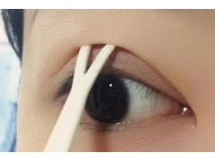 双眼皮越大眼睛就会越宽吗