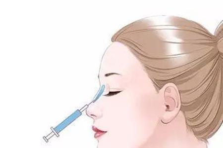 注射玻尿酸隆鼻整形非费用大概是多少钱