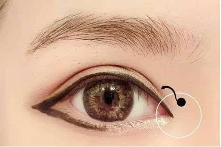 小眼睛做开眼角整形手术要多少钱啊