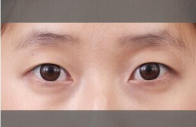 不能做双眼皮的眼睛图