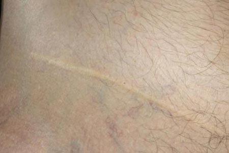 怎么才能把疤痕彻底去除
