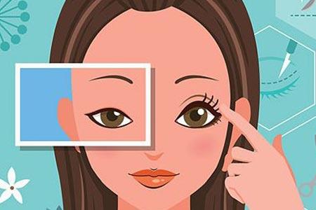 埋线双眼皮手术主要有哪些优势