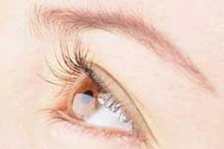 全切双眼皮整形术后怎么才能恢复的更快