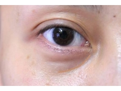 我的双眼皮做的太宽了怎
