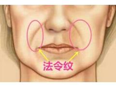 脸部法令纹很深要怎么才能去除