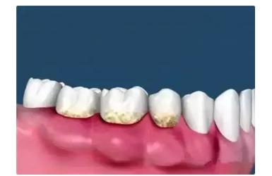 牙齿美白哪种方法好