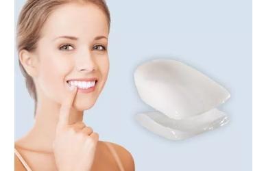牙贴面美白优点