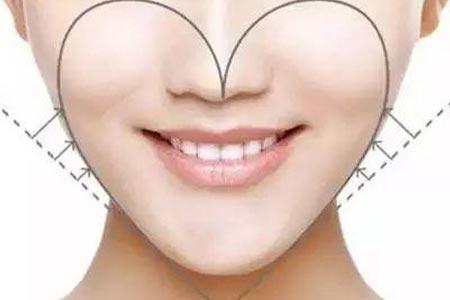 美莱全面部自体脂肪填充打造心形脸