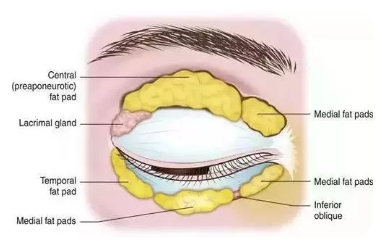 怎样判断肿眼泡类型,天生眼泡肿怎么解决